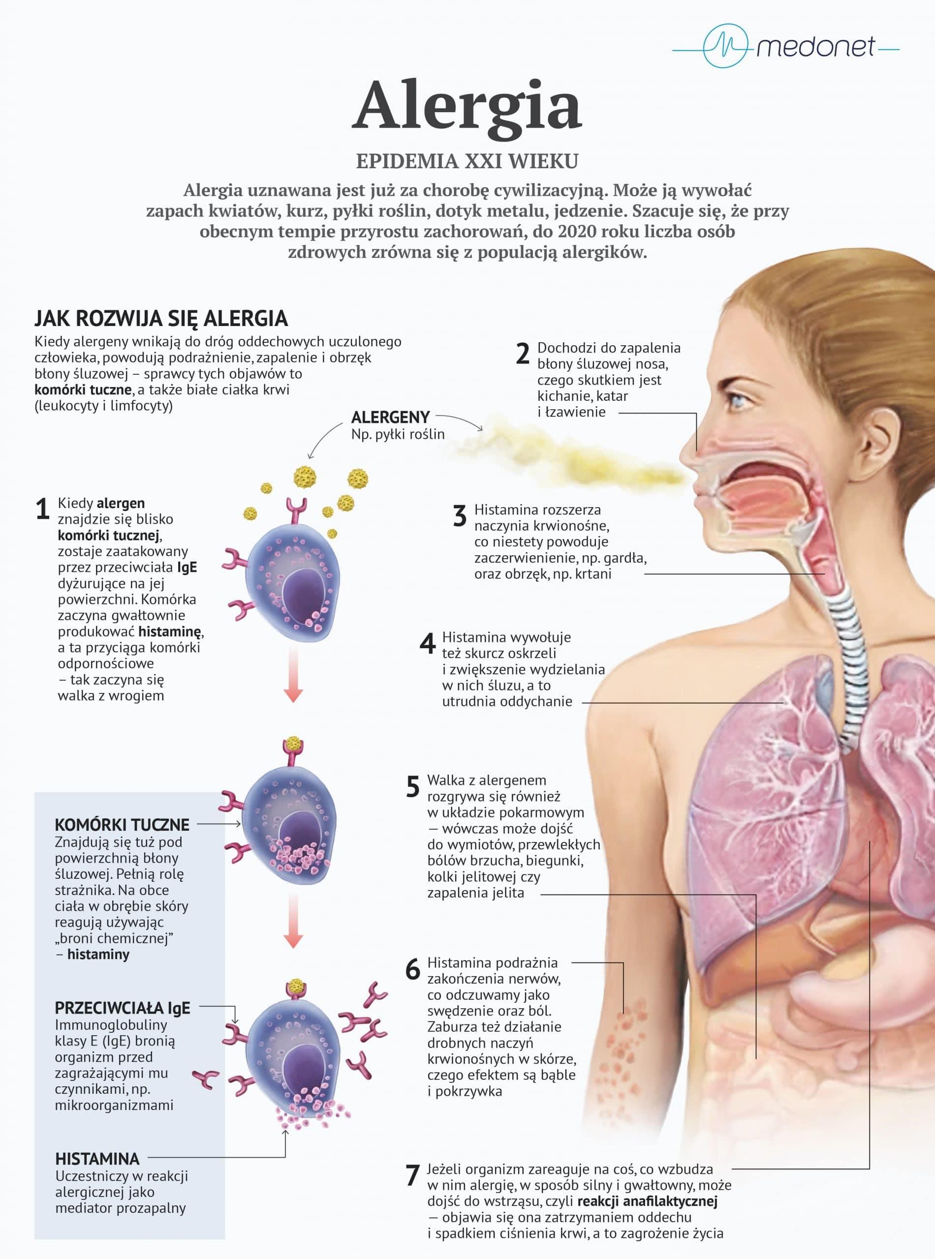 Alergie wziewne, krótka charakterystyka 1